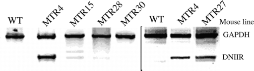 RT-PCR analysis of DNIIR mRNA expression in MT-DNIIR transgenic mouse lines. RNA isolated and pooled from  the hind limbs of two to four wild-type (WT) or transgenic (MT-DNIIR-4, -15, -27, -28, -30) mice maintained on normal food and  tap water was analyzed by RT-PCR. To specifically amplify the  truncated DNIIR cDNA, primers targeted to FLAG epitope sequences were used (Fig. 1). Amplifications of GAPDH was used  as an internal control. Two separate assays are shown separated  by the black bar.