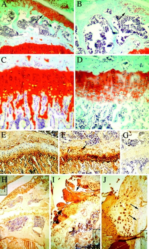 Localization of proteoglycans and type X collagen in  the knee joint. Sections from 8-wk-old wild-type (A and C) and  MT-DNIIR (B and D) knee joints stained with safranine O (A–D).  Images at 150× (A and B) show staining in the articular surface  (arrows). Images C and D focus on staining in the growth plate.  There was intense proteoglycan staining in the articular cartilage  of wild-type mice (A) while staining was less intense and patchy  on the articular surface of transgenic mice (B). Staining was also  less intense in the transgenic growth plate (D) relative to the  wild-type growth plate (C). Sections from 8 wk (E–G) and 6-mo-old  (H–J) wild-type (E and H) and MT-DNIIR (F, G, I, and J) were  used for immunohistochemical staining of type X collagen (E–J).  There was increased type X collagen staining in the transgenic  growth plate at 8 wk (F) relative to wild-type controls (E). Intracellular staining was detected in transgenic chondrocytes in the  upper zones of the growth plate (F, arrow). Type X collagen immunoreactivity was not readily detectable in articular cartilage from  wild-type mice at 6 mo of age (H) but was detected in fibrillated  cartilage (I, arrow) from older (6 mo) transgenic mice. Chondrocytes in osteophytes also stained for type X collagen (J). Arrows  represent the original joint lining (J). No staining was detected in  the absence of primary anitbody (G). Bars: (A and B) 66 μm; (C  and D) 25 μm; (E and F) 66 μm; (G) 200 μm; (H and I) 100 μm;  (J) 50 μm.