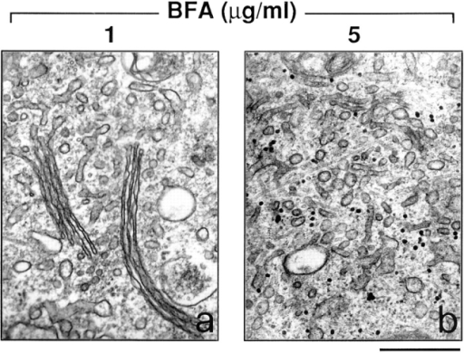 Dicumarol prevents the tubular-reticular transformation of the Golgi apparatus induced by BFA. RBL cells were  treated with the indicated BFA concentrations for 15 min after a  30-min pretreatment with 200 μM dicumarol. They were then processed for electron microscopy. Dicumarol (and ilimaquinone,  not shown) prevents the tubular-reticular transformation and disappearance of the Golgi stacks induced by moderate (a), but not  by high concentrations of BFA (b). Similar results were obtained  in three independent experiments run in duplicate. Bar, 0.5 μm.