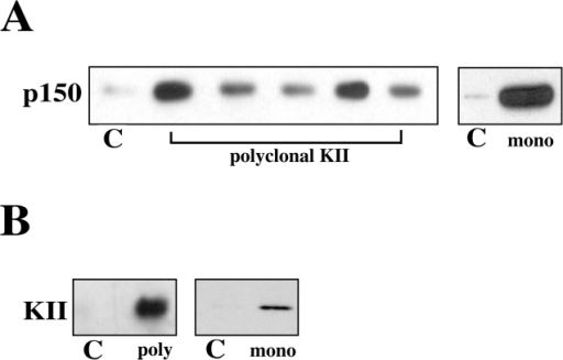 Kinesin II and the dynactin complex interact in melanophore extracts. (A) Kinesin II was precipitated from melanophore extracts with five different polyclonal (left) and one monoclonal (right) antibodies against the 95- and 85-kD subunits of kinesin II, respectively. Blots were probed with monoclonal anti-p150. Quantification of these blots shows that different kinesin II antibodies pull down 2–6% of the total p150 in the extract. (B) Dynactin was precipitated with polyclonal (left) or monoclonal (right) antibodies against p150. Blots were probed with monoclonal anti–kinesin II. Quantification of these blots shows that p150 antibodies pull down ∼1% of the total kinesin II in the extract. C indicates control samples precipitated either by normal rabbit IgG (left) or an unrelated monoclonal antibody (right).
