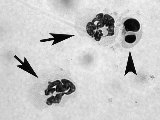 Representative microscopic images of normal and apoptotic  neutrophils. Aliquots (0.4 ml) of PBN suspensions of A1-a−/− mice (0.5 ×  106/ml) were incubated at 37°C for 12 h in RPMI 1640 medium. Arrows  indicate normal neutrophils and arrowhead indicates an apoptotic neutrophil containing condensed and fragmented nuclei (original magnification,  ×1,000, May-Giemsa stain).