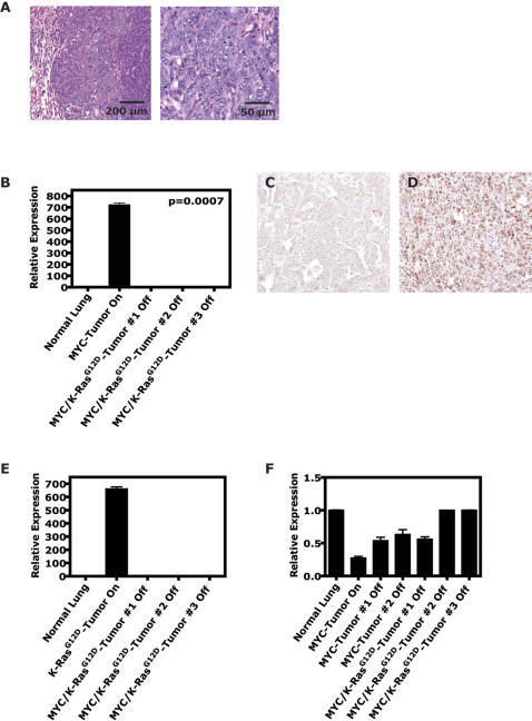 Conditional expression of MYC/K-rasG12D in the lung predisposes to bronchiogenic adenocarcinomas.(A) Double MYC/K-rasG12D (CMR)-induced tumors have histology consistent with adenomas/adenocarcinomas similar to MYC- and K-rasG12D-induced tumors on H&E. (B) To rule out the possibility that the double oncogene-induced lung tumors had developed doxycycline (or TetO)-dysregulated MYC or K-rasG12D expression, inactivated double oncogene-induced lung tumors were examined for spurious expression of MYC and K-rasG12D at the mRNA and/or protein level. qRT-PCR analysis of double oncogene-induced lung tumors from CMR mice that had been inactivated (doxycycline removed from drinking water) for 2–9 weeks demonstrated lack of expression of the MYC transgene in contrast to a MYC-induced tumor that had never been inactivated. Immunohistochemical analysis (performed like Figure 1D) on similar (C) inactivated double oncogene-induced tumors also showed lack of MYC transgene product and endogenous murine MYC protein compared to a (D) MYC-activated tumor. qRT-PCR analysis of double oncogene-induced lung tumors from CMR mice that had been inactivated demonstrated no expression of the (E) K-rasG12D transgene or upregulation of (F) endogenous murine K-ras (> = 3–9 tumors for > = 3 mice per experiment).
