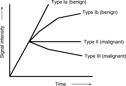 Shapes of signal-intensity curves and likely histology (Kuhl et al, 1999).