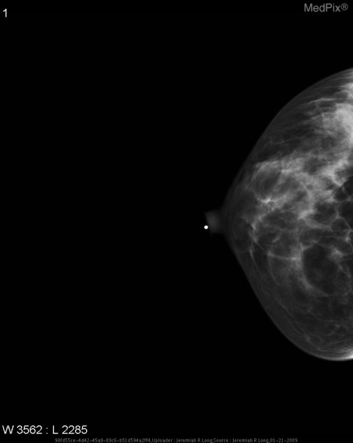 Comparison CC and MLO digital mammograms of the right breast from one year prior show no appretiable abnormality.