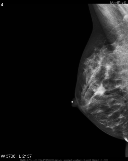 Current CC and MLO digital mammograms demonstrate a spiculated mass within the upper half of the breast at the 12:00 position which persisted on compression imaging.