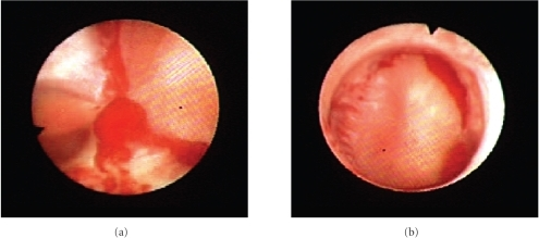 Ureteroscopic images demonstrating ring-like clots surrounding each calyx in the collecting system.