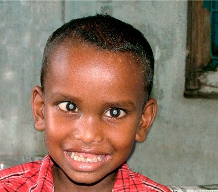 Young boy with cataract blindness. BANGLADESH