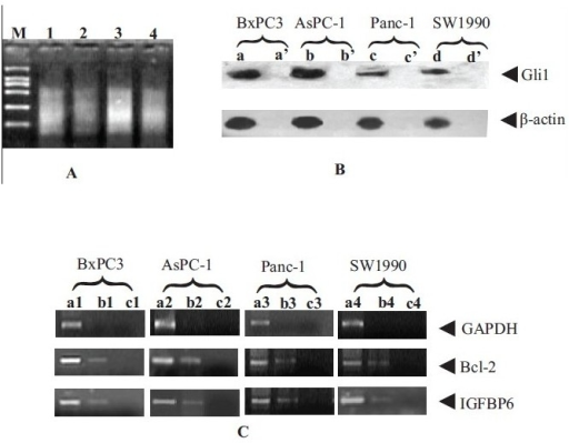 Binding of Gli1 to Bcl-2 and IGFBP6 genes by XChIP-PCR assay. A: total DNA sheared for 6 rounds of 10 s pulses (350 W, 60 s intervals). (M: BL200 DNA Marker; 1: BxPC3; 2: AsPC-1; 3: Panc-1; 4: SW1990.); B: a, b, c and d show expression of Gli1 protein compared with negative controls (a', b', c' and d') by IP-western assay; C: results of XChIP-PCR. the lanes of a1, a2, a3 and a4 were PCR products of positive control DNA templates; that of b1, b2, b3 and b4 were PCR products of DNA templates from Gli1 XChIP; that of c1, c2, c3 and c4 were negative controls