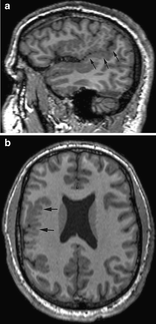 Parasagittal (a) and axial (b) T1-weighted images show the delicate appearance of PMG (black arrows) in the right sylvian and suprasylvian cortex. Note the continuity of the posterior sylvian fissure on the parasagittal image (a); this is diagnostic of perisylvian PMG