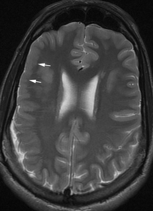 Axial FSE T2 weighted image shows right frontal PMG (white arrows) with fusion of the molecular layer of cortex resulting in paradoxically smooth cortical surface