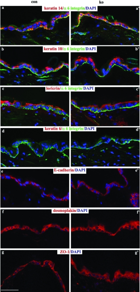Normal differentiation and cell–cell junctions in RhoA- epidermis. Cryosections of back skin of 5-mo-old mice were analyzed for the presence of keratin 14 (a, a′), keratin 10 (b, b′), loricrin (c, c′), keratin 6 (d, d′), E-cadherin (e, e′), desmoplakin (f, f′), and ZO-1 (g, g′). Counterstaining for α6 integrin indicates the DEJs (a-d, a′-d′). Nuclei are visualized by DAPI. (Bar = 50 μm.)
