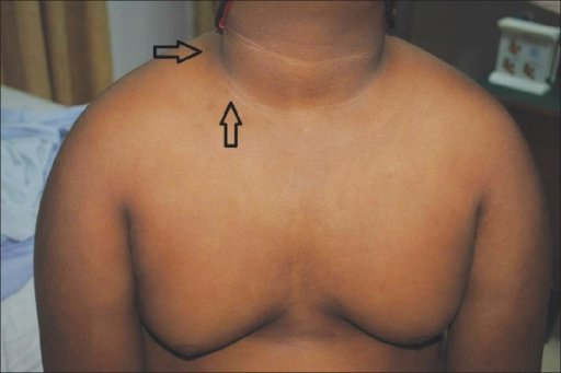 Bilateral lipomastia with acanthosis nigricans