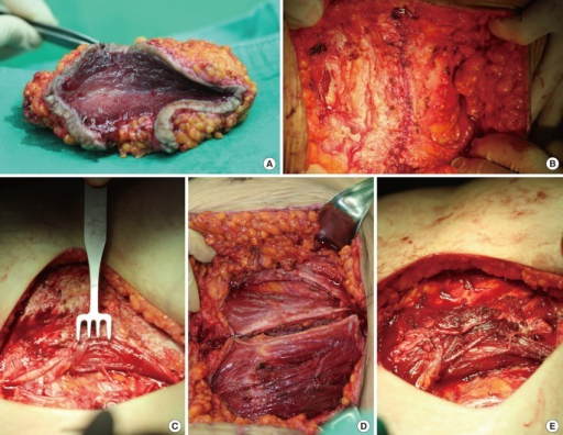 Intraoperative photograph: surgical specimens after deb ...