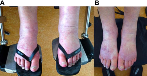 Chronic regional pain syndrome in the patient's feet. (A) Before treatment.(B) After treatment with 10% ketamine cream and palmitoylethanolamide.