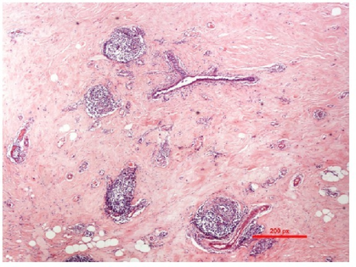 Microscopic images showing marked fibrosis and keloid-like hyalinization of interlobular stroma.