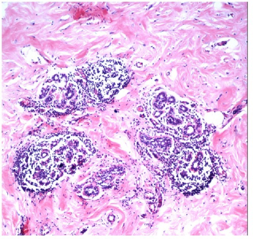 Microscopic images showing interlobular fibrosis with entrapped breast lobules and intralobular lymphocytic infiltration (H/E ×350).