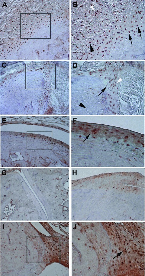 Representative immunohistochemical results of phosphorylated Smad1/5/8 in the peripheral joints of HLA-B27 transgenic rats (B27TR). (A), (B) 18-week-old IgG2a,k treated B27TR. (B) is a higher magnification view of boxed area in (A). Smad1/5/8 signalling is detected in spindle-shaped entheseal fibroblast-like cells (black arrowhead), inflammatory cells (white arrowhead), and in round chondroblast-like cells (black arrows) at entheseal level. (C), (D) 27-week-old IgG2a,k treated B27TR. (D) is a higher magnification view of boxed area in (C). Proliferating (white arrowhead) and prehypertrophic (black arrow) chondrocyte-like cells show phosphorylated Smad1/5/8-immunopositivity in the fibrocartilage at the point of entheseal attachment. Hypertrophic chondrocytes are negative (black arrowhead). (E), (F) 27-week-old IgG2a,k treated B27TR. (F) is a higher magnification view of boxed area in (E). Immunopositive proliferating chondrocytes are evident in the articular cartilage (black arrow). (G), (H) 18-week-old anti-TNF-α treated B27TR. Absence of phosphorylated Smad1/5/8 immunopositivity in the articular cartilage (G) and at the entheseal level (H). (I), (J) 27-week-old anti-TNF-α treated B27TR. (J) is a higher magnification view of boxed area in (I). Proliferating chondrocytes in the fibrocartilaginous point of entheseal attachment show strong immunopositivity for phosphorylated Smad1/5/8 (black arrow). Original magnification: (G) ×10; (A, C, E, H, I) ×20; (B, D, F, J): ×40.