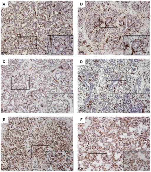 CD31 immunohistochemistry.Original magnification×10, and ×40 magnification of the area identified by a rectangle. CD31 (brown) and counterstaining with hematoxylin. Fetuses with PH (A, C, E) were compared with fetuses of a similar gestational age without PH (B, D, F). A: Fetus with right ventricular hypoplasia and a septal defect, 18 weeks, LW/BW = 0.010; B: Fetus with pulmonary atresia and a septal defect, 16 weeks, LW/BW = 0.024; C: Fetus with tetralogy of Fallot, 22 weeks, LW/BW = 0.005; D: Fetus with an atrioventricular septal defect, 17 weeks, LW/BW = 0.027; E: Fetus with pulmonary atresia and tricuspid atresia, 36 weeks, LW/BW = 0.009; F: Fetus with tetralogy of Fallot, 33 weeks, LW/BW = 0.029.