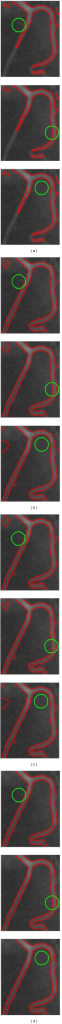 Segmentation results on an X-ray vessel image by CV (a), RSF (b), LGIF (c), and our method (d) with different initial contours. The initial and the final zero level sets are plotted as the green and the red contours, respectively (color online).