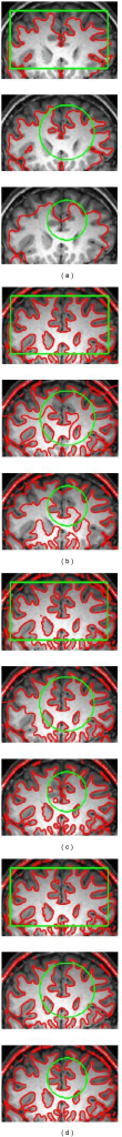 Segmentation results on an MR brain image with intensity inhomogeneity by CV (a), RSF (b), LGIF (c) and our method (d) with different initial contours. The initial and the final zero level sets are plotted as the green and the red contours, respectively (color online).