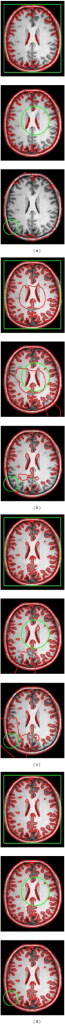 Segmentation results on an MR brain image with intensity inhomogeneity by CV (a), RSF (b), LGIF (c), and our method (d) with different initial contours. The initial and the final zero level sets are plotted as the green and the red contours, respectively (color online).