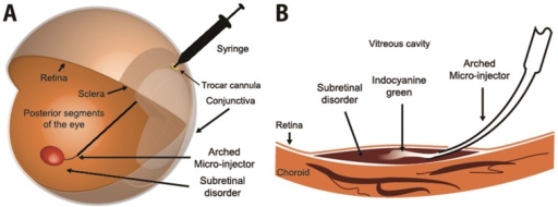 A comprehensive process of subretinal injection via the arched micro-injector (ARCMI).(A) The ARCMI penetrates the ocular curves by passing through a trocar cannula, which is used as a surgical aid for protection from ocular tissue damage in ophthalmology. The ARCMI can then be glided up to the target site at the retinal region of posterior segment of the eye. (B) Magnified image of subretinal insertion of indocyanine green via ARCMI. ARCMI slides along the retinal surface to reduce retinal tissue damage. Indocyanine green was injected into the subretinal target site.