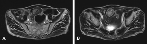 T2-weighted magnetic resonance image. Reveals an intussusception as a target-like mass (A) and a hyper-intense tumor as the lead point (B).