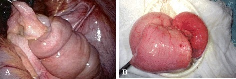 An approximately 10-cm-long ileal intussusception with a preceding tumor. (A) Laparoscopic image. (B) Intussuscepted ileum delivered from the small laparotomy.