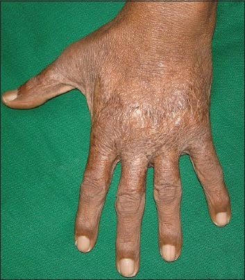 Complete subsidence of the lesions after three months of correcting arteriovenous fistula