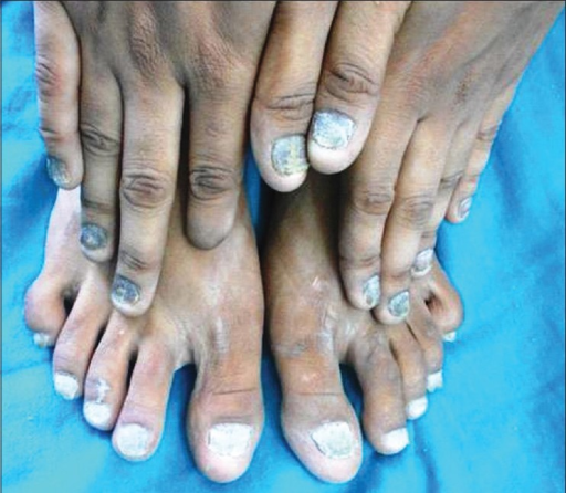 All fingers and toes show total dystrophic variant of onychomycosis