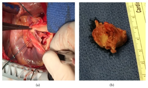 The pulmonic valve in vivo (a) and the excised valve leaflet (b).
