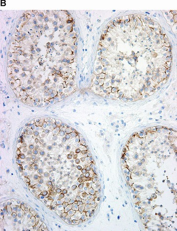 COX in the testis. Positive immunohistochemical reaction for COX-1 in blood vessels, in epithelium of rete testis, and in rare interstitial cells (A). Positive immunohistochemical reaction for COX-2 in the seminiferous tubules (B).