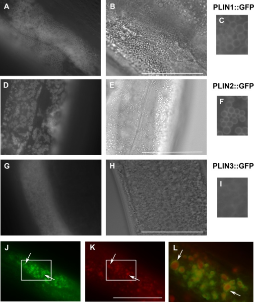 Expression of human perilipins fused to GFP in C. elegans.(A–C) Expression of human PLIN1::GFP in live transgenic C. elegans. PLIN1::GFP is localized on vesicles with an appearance of lipid droplets. PLIN2::GFP (D–F) is localized in transgenic animals on vesicular structures with an appearance of lipid droplets similarly as PLIN1::GFP. PLIN3::GFP (G, H and I) yields a more diffuse cytoplasmic pattern with faintly stained vesicular structures. (A, D) and (G) and details in (C, F) and (I) show GFP in fluorescence microscopy and (B, E) and (H) corresponding areas to (A, D) and (G) in Nomarski optics. (J, K) and (L) show PLIN2::GFP in fluorescence microscopy (J) in fixed C. elegans stained with LipidTox (K). The area indicated by the white rectangle in (J) and (K) is magnified and merged for co-localization of PLIN2::GFP (green) and LipidTox (red) in (L). Arrows indicate lipid droplets clearly marked by GFP with the LipidTox positive content. Bars represent 50 µm.