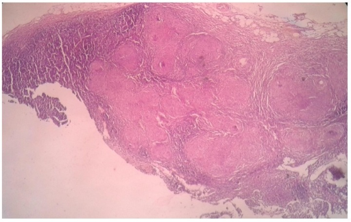 Histopathological examination of mesenteric lymph node with multiple granulomas at low power.