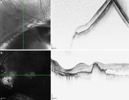 OCT of the right and left eyes. The right eye (a) shows retinal thinning. The retina is thicker in the left eye (b) than in the right eye, and foveal hard exudates are present.