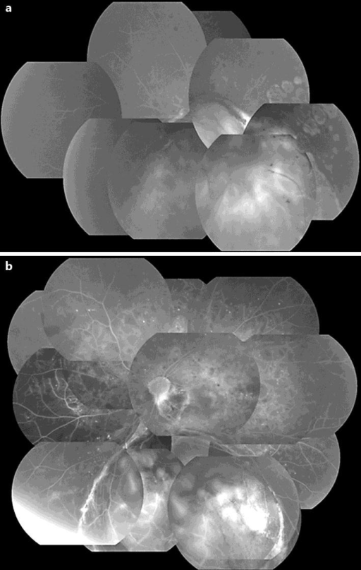 Fluorescein fundus angiography of the right and left eyes. a The right eye shows no changes of DR. b The left eye displays a wide area of retinal nonperfusion.
