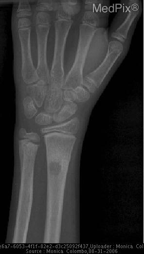 1 cm in diameter subperiosteal radiolucency proximal to healed fracture at distal radius and medioposterior to distal ulna