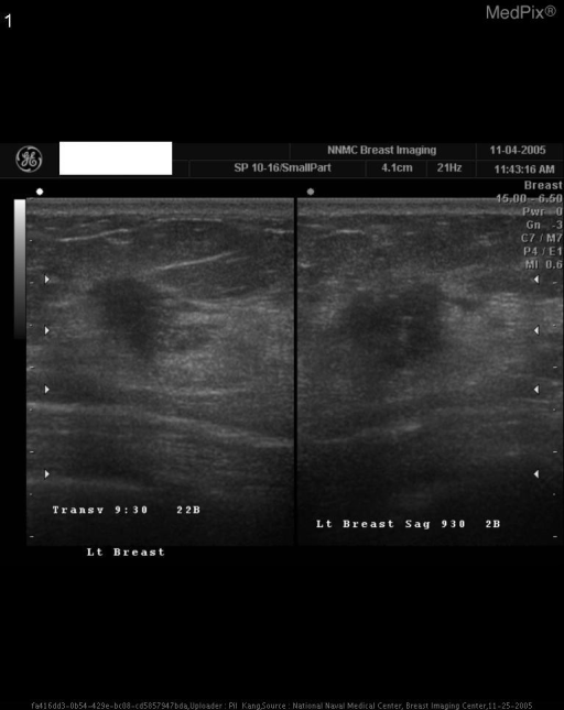 A focused ultrasound examination demonstrates a breast mass which appears hypoechogenic, with shadowing, with ill-defined margins with suggestions of spiculation.  This was biopsied under ultrasound and was found to be infiltrating ductal carcinoma.