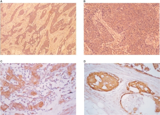 Immunohistochemical staining for DPD. (A) Grade 0 (no staining), (B) grade 2 (weak), (C) grade 3 (intermediate), (D) grade 3 (strong).