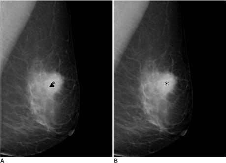 A 61-year-old woman presented with a screening-detected breast cancer in the left breast.A,B. Serial mediolateral oblique digital mammograms taken without release of breast compression within 19 seconds. The computer-aided detection system marks the mass component and the microcalcifications component correctly on the first mediolateral oblique view (A) (asterisk and triangle). The computer-aided detection system, however, does not mark the microcalcifications on the second mediolateral oblique view (B).