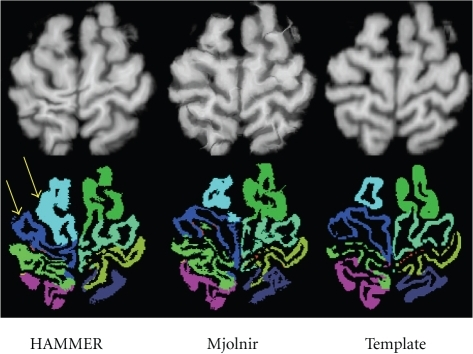 Example of an outlier occurring in HAMMER, where HAMMER's ability to follow the folding pattern of the cortex is lacking. The top row shows the deformed MR images and the corresponding template image on the right. The bottom row shows the corresponding deformed labels from the NIREP Na0 database and the template's labels.