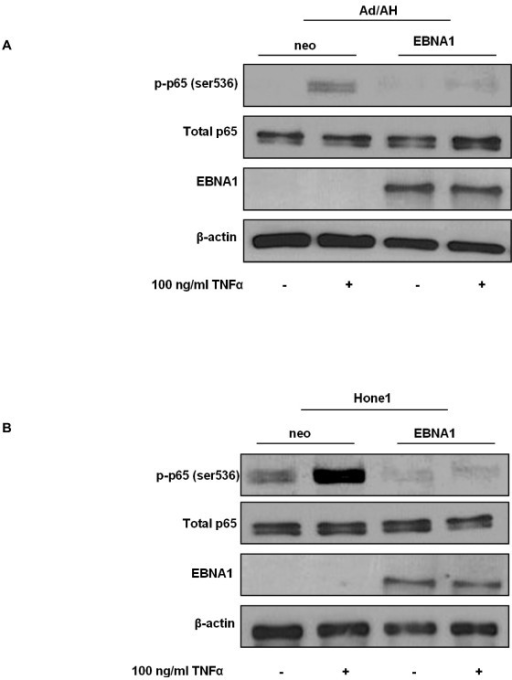 EBNA1 inhibits p65 phosphorylation in carcinoma cell lines. Western blot analyses of total and phosphorylated (ser 536) p65 in (A) Ad/AH and (B) Hone1 cells stably expressing EBNA1 or a neomycin control vector (neo) under basal conditions or following stimulation with TNFα. Western blotting for EBNA1 and β-actin serve as EBNA1 expression and protein loading controls, respectively.