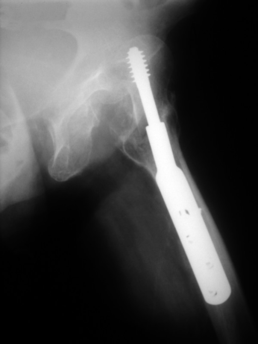 X-ray of the left hip demonstrating a posterior hip dislocation.