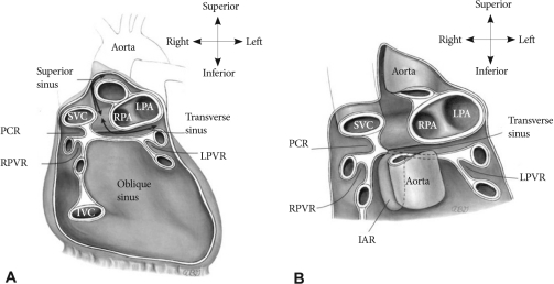 A: the anatomy of the pericardium and its reflections a   Open-i