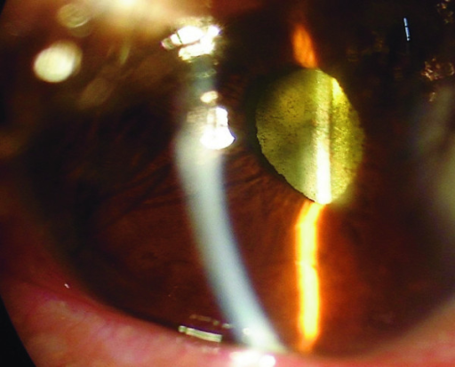 inflammation remission 4 days after intravitreal antibiotic injectionIntravitreal Injection Endophthalmitis