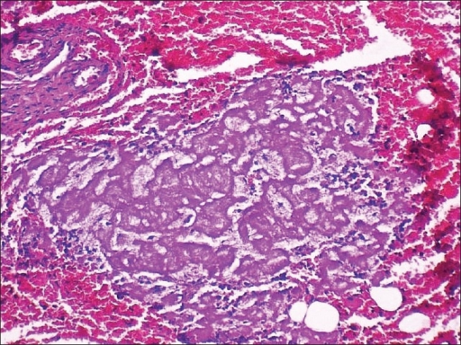 Presence of fibrinous microthrombi (H and E stain, original magnification, ×40)