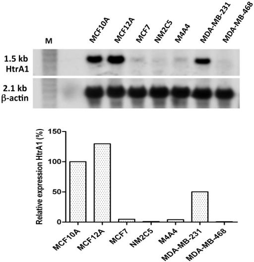 HtrA1 Gene Expression in hBC cell lines.RNA was isolated from the various human breast epithelial cell lines and expression levels of HtrA1 mRNA were determined using QPCR (Lower Panel) and Northern blot analyses (Upper Panel) as described. Results are representative of multiple independent analyses. Expression levels were 20–25X higher in the non-tumorigenic MCF10A and 12A cell lines, with very low expression levels in most of the hBC cell lines (MDA-MB-231 was the exception; see text). β-actin transcript were used as to assess loading on Northern blots.