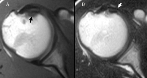 A, T1-weighted image showing a low-intensity area at the lesser tuberosity (black arrow) B, T2-weighted image showing a high-intensity area of the subscapularis tendon (white arrow).