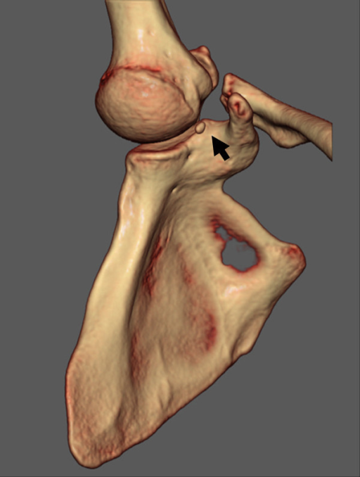 A three-dimensional-computed tomography (3D-CT) image shows a small bony fragment located between the humeral head and the glenoid of the scapula (arrow).