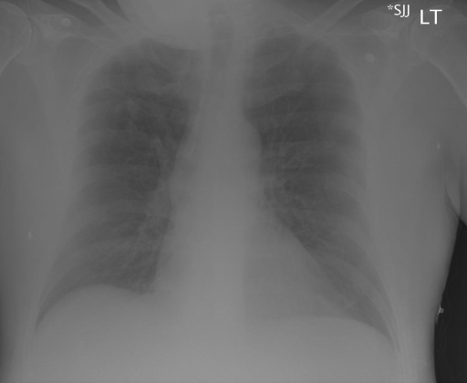 Chest Radiograph Frontal and Lateral Views dated 8/14//XXXX.
